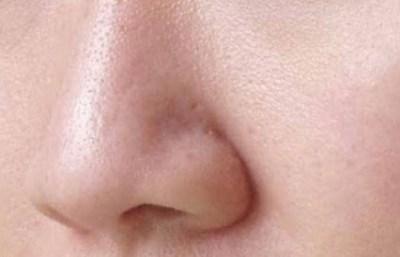 pori yaitu lubang kecil yang berada pada kulit sekaligus menjadi susukan pernapasan kulit Cara Alami Mengecilkan Pori-pori Kulit Wajah