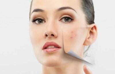 Bahan alami untuk menyamarkan noda hitam pada kulit wajah  Bahan Alami untuk Menyamarkan Noda Hitam pada Kulit Wajah