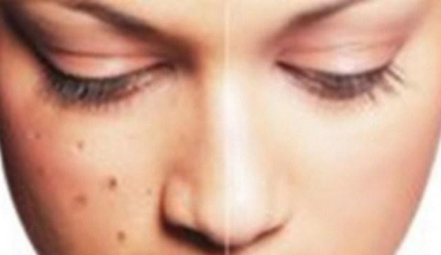 Cara Menghilangkan Flek Hitam Pada Kulit Wajah Secara Alami Dan Cepat  10 Cara Menghilangkan Flek Hitam Pada Kulit Wajah Secara Alami Dan Cepat