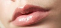 mudah terluka juga menimbulkan rasa sakit Cara Mengatasi Bibir Kering dan Pecah-pecah
