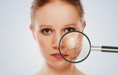 Penyebab dan cara mengatasi kulit bersisik secara alami  Penyebab dan Cara Mengatasi Kulit Bersisik Secara Alami