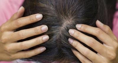 Penyebab rambut beruban yang wajib kita ketahui  Penyebab Rambut Beruban yang Wajib Kita Ketahui